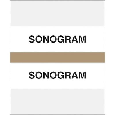 Medical Arts Press® Standard Preprinted Chart Divider Tabs; Sonogram, Tan