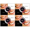 Photo Image Laser Postcards; Before & After, Teeth Whitening