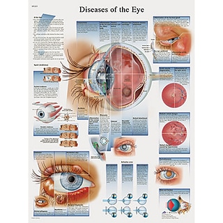 Laminated Diseases of the Eye Chart