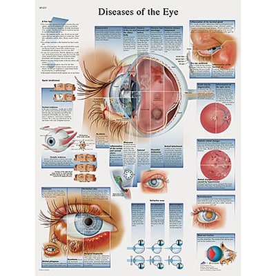 3B Scientific® Anatomical Charts; Diseases of the Eye, Laminated