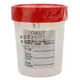 Globe Scientific Inc. Polypropylene Specimen Container, 100/Case