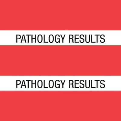 Medical Arts Press® Large Chart Divider Tabs; Pathology Results, Red